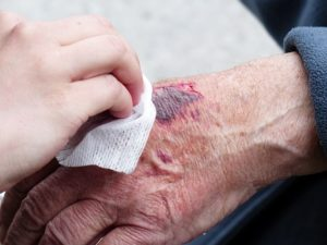 Spanish medical terms hand injury