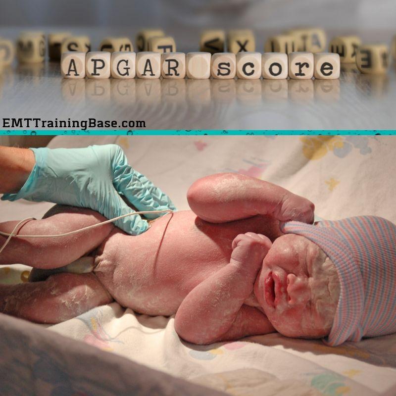 Apgar score Newborn Baby Assessment