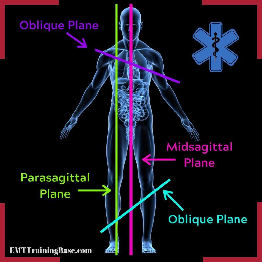 Midsagittal Oblique Planes