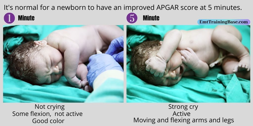 APGAR Test one min and five